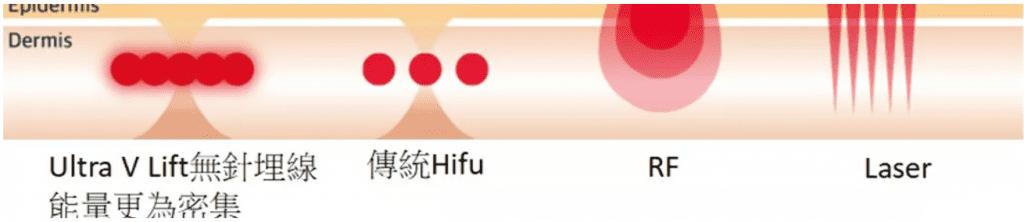 Ultra V HIFU Plus 面部拉提